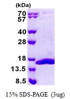 AR50980PU-N - Complex IV subunit Vb