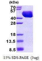 AR50995PU-N - Maltose Binding Protein Tag / MBP-Tag