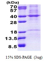AR51008PU-N - Prohibitin-2