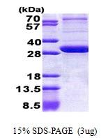AR51020PU-N - Peroxin 26 / PEX26