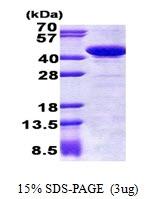 AR51022PU-N - STBD1 / Genethonin-1
