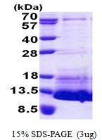 AR51029PU-N - pro-Natriuretic Peptide C