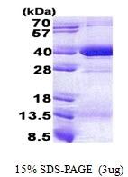 AR51046PU-N - HLA class I Cw7 alpha / HLA-C