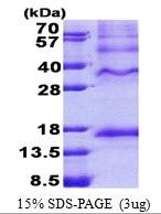 AR51047PU-N - Inhibin beta C chain (INHBC)