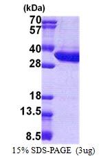 AR51052PU-N - Malectin