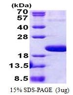 AR51064PU-N - IL1F10 / FIL1T