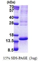 AR51102PU-N - TP53AIP1