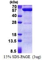 AR51105PU-N - Protein phosphatase 1F / PPM1F