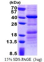 AR51111PU-N - HEPACAM2
