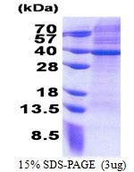 AR51125PU-N - MRPS2