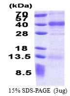 AR51126PU-N - Follistatin-related protein 1