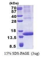 AR51132PU-N - PIP / GCDFP15