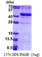 AR51133PU-N - Uracil phosphoribosyltransferase (UPRT)