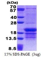 AR51138PU-N - PCBP1