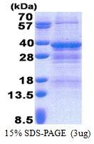 AR51140PU-N - NRBF2