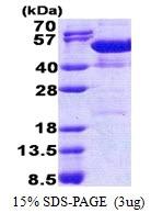 AR51141PU-N - NAP1L4