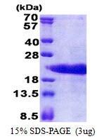 AR51142PU-N - Prothymosin alpha