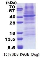 AR51146PU-N - Fucosyltransferase 3