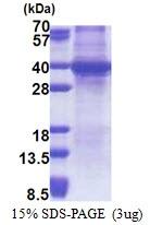 AR51150PU-N - Sprouty homolog 4 / SPRY4