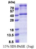 AR51162PU-N - DNTTIP1