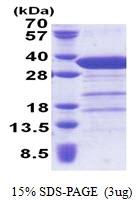 AR51167PU-N - Syntaxin 6 / STX6