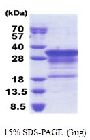 AR51172PU-N - Myelin Basic Protein