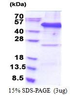 AR51181PU-N - EIF3F / EIF3S5