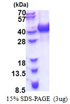 AR51194PU-N - hnRNP-A/B / HNRNPAB