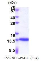 AR51195PU-N - Cysteine-rich protein 1