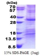 AR51201PU-N - CHCHD3