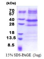 AR51205PU-N - NMNAT2