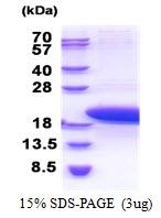 AR51208PU-N - Parathymosin / PTMS