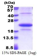 AR51218PU-N - EDA2R / TNFRSF27