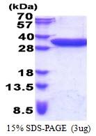 AR51221PU-N - CCDC447 / TACO1