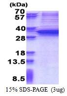 AR51234PU-N - SNAI1