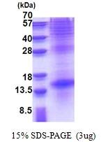 AR51247PU-N - Thyrotropin beta chain