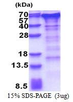 AR51250PU-N - Golgi membrane protein 1 / GOLM1
