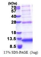 AR51264PU-N - Neuronal protein 3.1