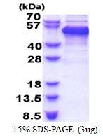 AR51271PU-N - RBM17 / SPF45