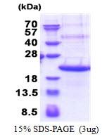 AR51272PU-N - TREM2