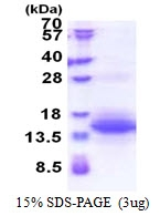 AR51277PU-N - UQCRH (Mitochondrial hinge protein)