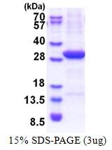 AR51298PU-N - VTCN1 / B7H4