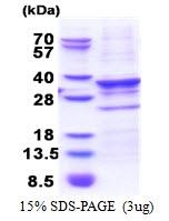 AR51301PU-N - CENP-Q