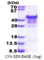AR51305PU-N - Carbonic anhydrase 14