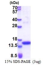 AR51307PU-N - Tyrosine-protein kinase JAK2