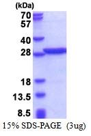 AR51320PU-N - PABPN1