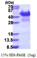 AR51324PU-N - SORBS3 / SCAM1