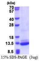 AR51333PU-N - BRICK1 / C3orf10
