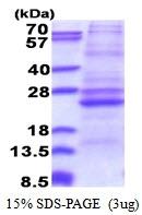 AR51336PU-N - ATP5F1