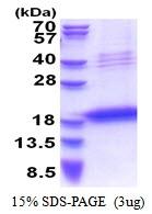 AR51343PU-N - Chondromodulin-1